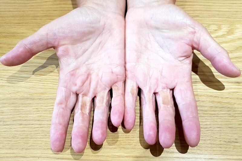 Atteinte très sévère de la maladie de Dupuytren stoppée par la chirurgie répétée avec multiples greffes de peau