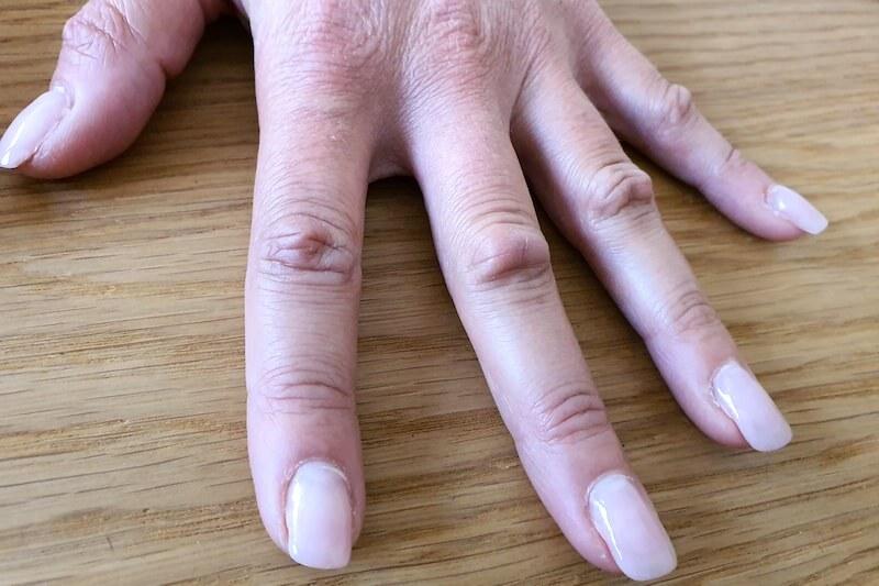 Coussinets phalangiens au dos des doigts - Maladie de Dupuytren