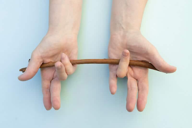 maladie de dupuytren doigt - rétraction 4e doigt