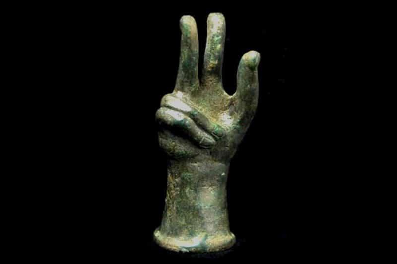 origine maladie dupuytren main - main de Sabazios avec rétraction doigts